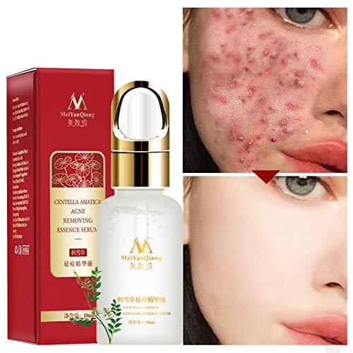 Allbestaye Supprimer le sérum anti-acné pour éliminer les marques d'acné et contrôler l'huile pour améliorer la peau