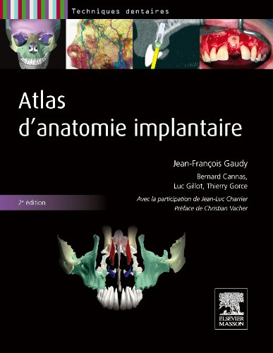 Atlas d'anatomie implantaire: Pilon Partiel 400ex 19/12/14