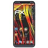 atFolix Folie für Xiaomi Redmi Note 5 Displayschutzfolie - 3 x FX-Antireflex-HD hochauflösende entspiegelnde Schutzfolie
