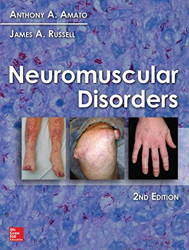 Neuromuscular Disorders, 2nd Edition (English Edition)