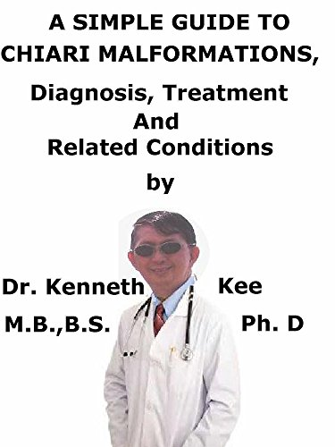 A  Simple  Guide  To  Chiari Malformations  Diagnosis, Treatment  And  Related Conditions (English Edition)
