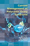 Current Management of Polycystic Ovary Syndrome (Royal College of Obstetricians and Gynaecologists Study Group)