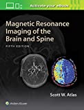 #9: Magnetic Resonance Imaging of the Brain and Spine