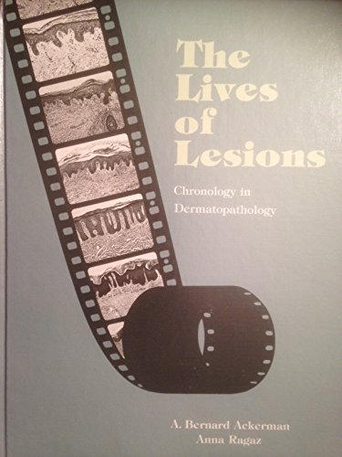 Lives of Lesions por A.Bernard Ackerman
