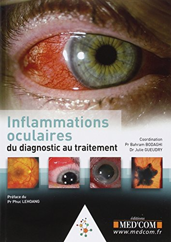 L'inflammation oculaire
