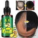 LanLan Oli per capelli,Tonici per capelli,Strumento di nutrizione di perdita dei capelli dei capelli di ripristino degli uomini di cura dei capelli delle donne 30ml degli uomini di cura dei capelli