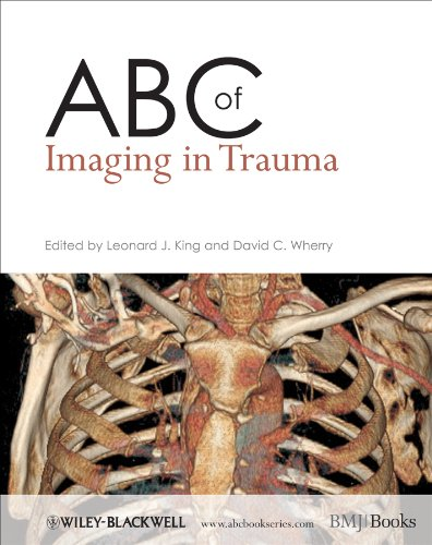ABC of Imaging in Trauma (ABC Series)