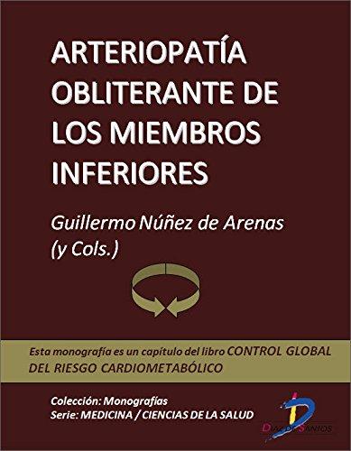 Arteriopatia obliterante de los miembros inferiores (Capítulo del libro Control global del riesgo cardiometabólico ): 1 por Guillermo Nuñez de Arenas