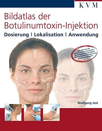 Bildatlas der Botulinumtoxin-Injektion: Dosierung / Lokalisation / Anwendung