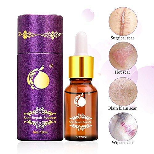 Olio di riparazione cicatriziale, cicatrice anti invecchiamento cicatrizzante lavanda per il viso L'olio riparato la pelle danneggiata, il trattamento cicatriziale per l'acne e le smagliature.