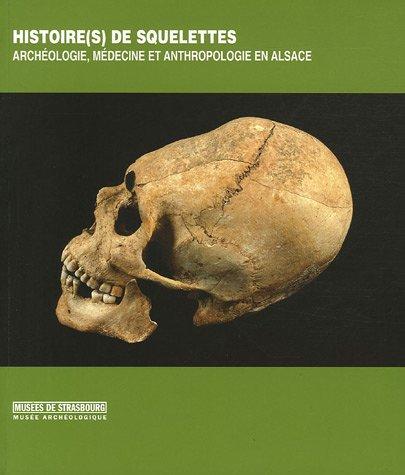 Histoire(s) de squelettes : Archologie, mdecine et anthropologie en Alsace