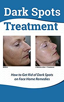 Dark Spots Treatment  - How to Get Rid of Dark Spots on Face Home RemediesBook preview:Numerous black areas or dark patches can be effortlessly lightened or eliminated to bring back a beautiful face skin tone. Dark areas, spots and also various other...