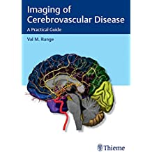 Imaging of Cerebrovascular Disease: A Practical Guide