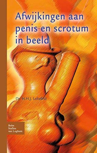 Afwijkingen Aan Penis En Scrotum In Beeld por H. H. J. Leliefeld epub