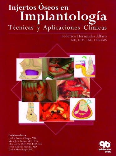 Injertos oseos en emplantologia: tecnicas y aplicaciones clinicas por Federico Hernandez Alfaro