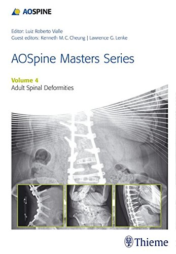 Aospine Master Series, Vol. 4: Adult Spinal Deformities (AOSpine Masters Series)