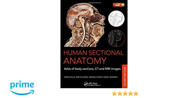Human Sectional Anatomy: Atlas of Body Sections, CT and MRI Images ...