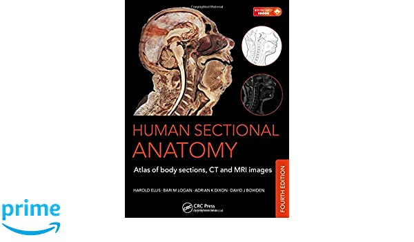 Buy Human Sectional Anatomy: Atlas of Body Sections, CT and MRI ...