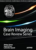 Brain Imaging Case Review Series