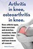 Arthritis in knee, osteoarthritis in knee. Knee arthritis exercises and stretches, treatments, home