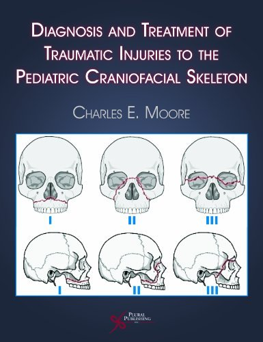 Diagnosis and Treatment of Traumatic Injuries to the Pediatric Craniofacial Skeleton by Charles E. Moore (2007-08-01)