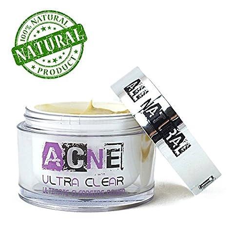 Natural Acne Treatment Cream - Best Non Greasy Organic Spot