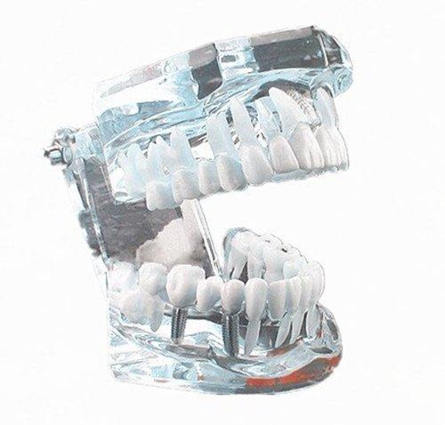 Autek Nouveau demonstration Dentaire transparent Modele des dent pour les enfants Dental Dentist Pathological Model Removable Tooth Teaching Model white(Dental-010)