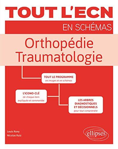 Tout l'ECN en Schémas Orthopédie Traumatologie