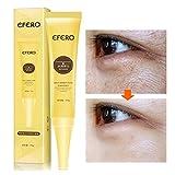 Best Crème contour des yeux pour les cernes et les Puffinesses - Crème Pour les Yeux, KISSION Eye Repair Enlever Review