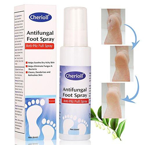 Fußspray, Fußpilz Spray,effektiv behandelt Fußpilz Fußpflege und gegen Fußgeruch,kuriert und verhindert Pilzinfektionen,Bei Fußpilz,...