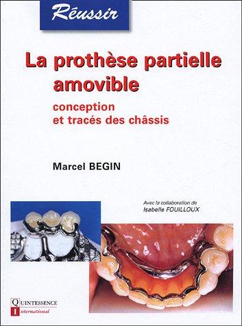 La prothèse partielle amovible : Conception et tracés des châssis