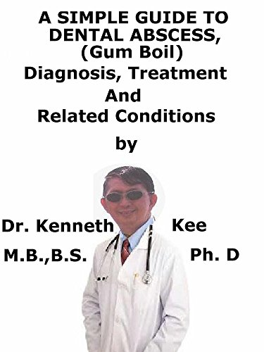 A  Simple  Guide  To  Dental Abscess, (Gum Boil)  Diagnosis, Treatment  And  Related Conditions