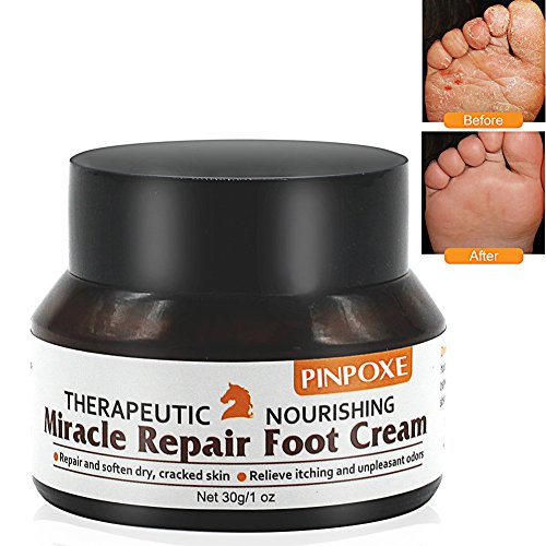 Preisvergleich Produktbild Fußcreme, Fußpilz Creme, fusspflege creme, fußbalsam, Pferdesalbe FüßeTrockene Spröde Haut Fußcreme, kuriert und verhindert Pilzinfektionen, Fußschweiß und Fußgeruch, 30g