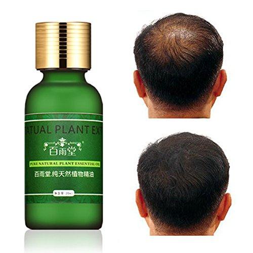 LM Extrait Naturel la croissance rapide Cheveux Essence Huile essentielle liquide...
