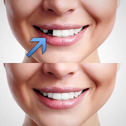 Quick Dental Tooth™ Provisorischer Zahnersatz Zahnprothese