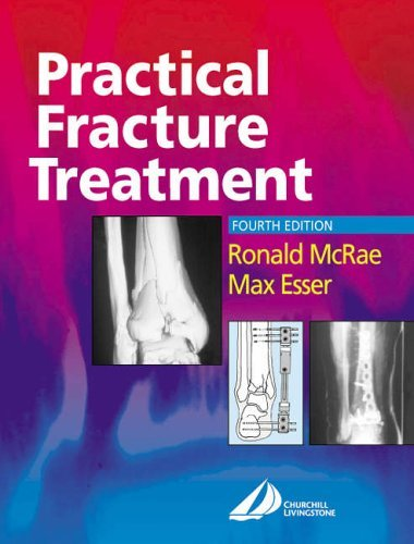 Practical Fracture Treatment by Ronald McRae FRCS(Eng Glas) FChS(Hon) AIMBI Fellow of the British Orthopaedic Association (2002-05-29)