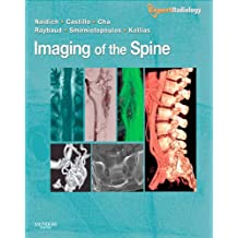 Imaging of the Spine: Expert Radiology Series (English Edition)