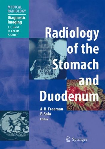 Radiology of the Stomach and Duodenum (Medical Radiology) (2007-11-07)
