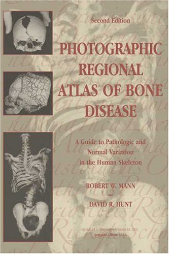 Photographic Regional Atlas of Bone Disease: A Guide to Pathologic and Normal Variation in the Human Skeleton by Robert W. Mann (2005-01-01)