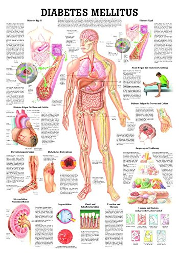 Ruediger Anatomie TA78 Diabetes mellitus Tafel, 70 cm x 100 cm