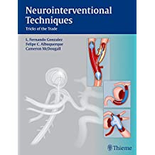 Neurointerventional Techniques: Tricks of the Trade