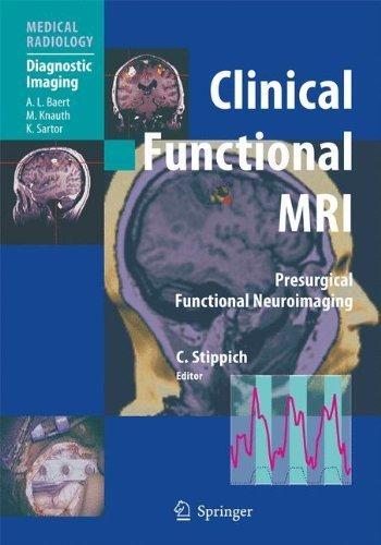 Clinical Functional MRI: Presurgical Functional Neuroimaging (Medical Radiology) (2010-11-04)