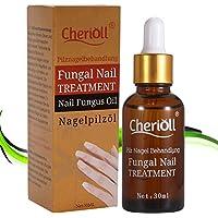 Tratamiento Premium anti hongos de uñas,Nails fórmula anti hongos para uñas,Nagelpflege gegen Nagelpilz für helle Nägel. geeignet für Finger und Zeh gesunde Nägel
