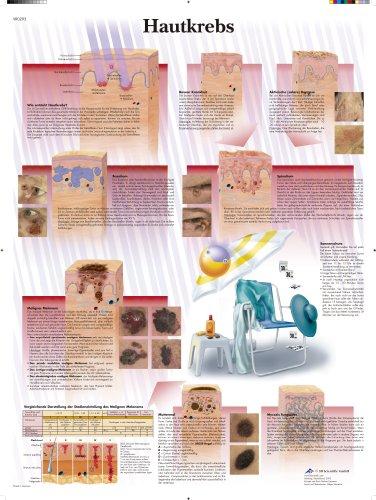 3B Scientific Lehrtafel - Hautkrebs