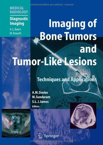 Imaging of Bone Tumors and Tumor-Like Lesions: Techniques and Applications (Medical Radiology) (2009-10-23)
