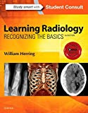 #3: Learning Radiology: Recognizing the Basics
