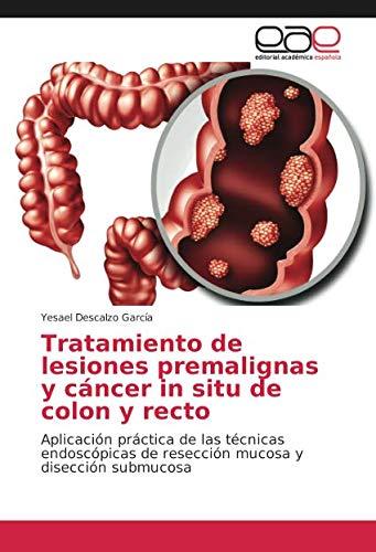 Tratamiento de lesiones premalignas y cáncer in situ de colon y recto: Aplicación práctica de las técnicas endoscópicas de resección mucosa y disección submucosa
