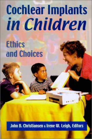 cochlear-implants-in-children-ethics-and-choices