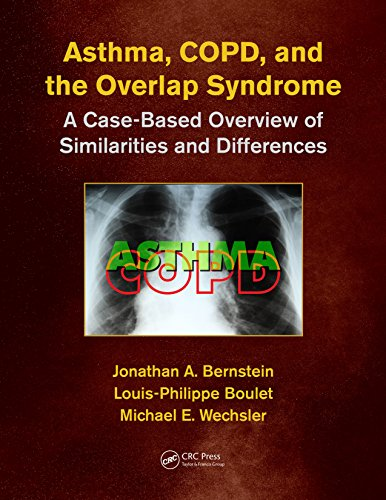 Asthma, Copd, And Overlap: A Case-based Overview Of Similarities And Differences por Jonathan A. Bernstein epub