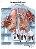 3B Scientific Lehrtafel - Lungenentzündung